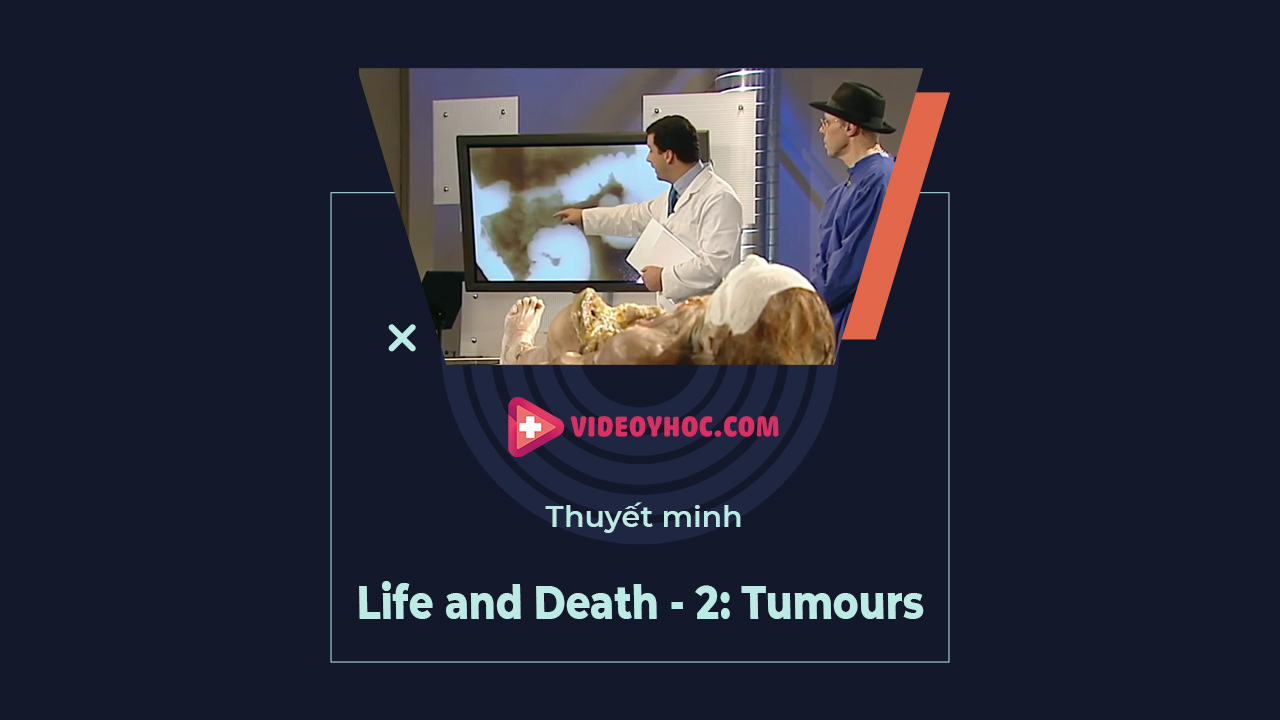 Mổ xác: Life and Death - 2. Tumours (ung thư)