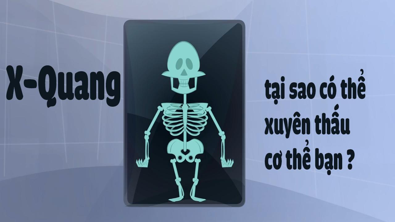 X-quang tại sao có thể xuyên thấu cơ thể bạn ?
